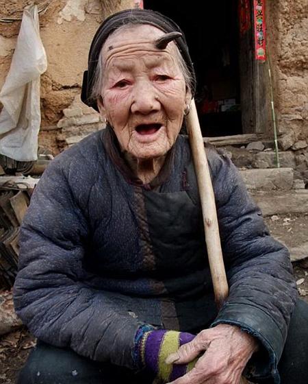 صورة رقم 4 - قرن بطول 6 سم يبرز في جبين معمرة صينية