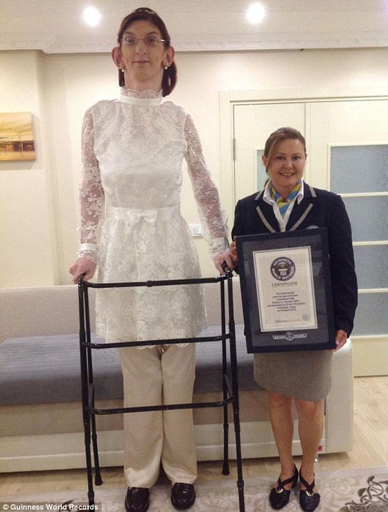 فتاة تركية 16 سنة اقصر انسان في العالم - صور