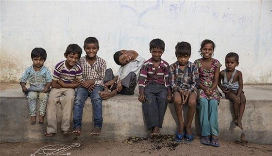 صورة رقم 3 - صور طفل غير قابل للشنق.. يحني عنقه بزاوية 30 درجة
