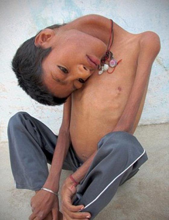صورة رقم 4 - صور طفل غير قابل للشنق.. يحني عنقه بزاوية 30 درجة
