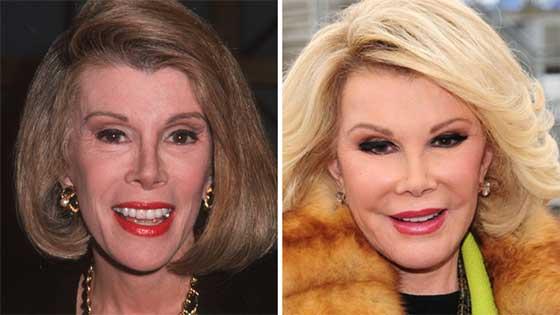 صورة رقم 3 -  أموال طائلة أنفقها هؤلاء النجوم والمشاهير على عمليات التجميل