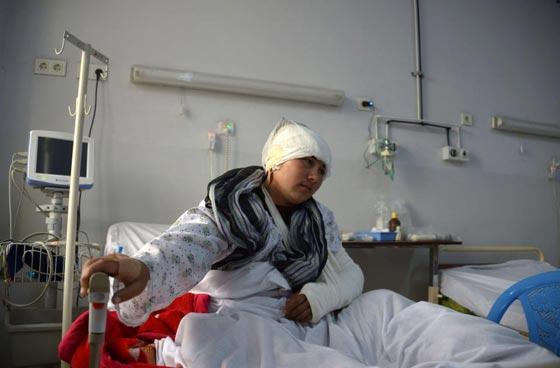 صورة رقم 6 - افغاني يقطع اذني زوجته وآخر يقطع لزوجته انفها