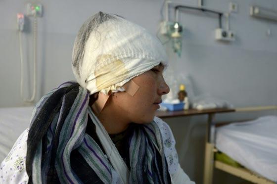 صورة رقم 7 - افغاني يقطع اذني زوجته وآخر يقطع لزوجته انفها