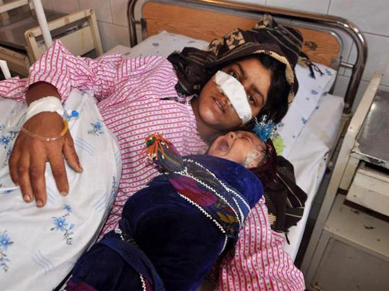 صورة رقم 2 - افغاني يقطع اذني زوجته وآخر يقطع لزوجته انفها