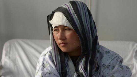 صورة رقم 8 - افغاني يقطع اذني زوجته وآخر يقطع لزوجته انفها