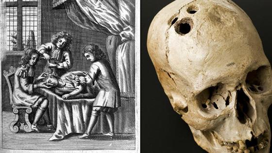 تعرف على الممارسات الطبية الاكثر قسوة وبشاعة عبر التاريخ.. صور صورة رقم 5