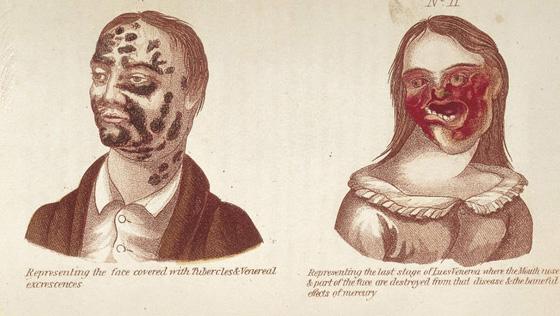 تعرف على الممارسات الطبية الاكثر قسوة وبشاعة عبر التاريخ.. صور صورة رقم 6