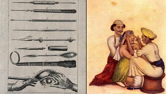 تعرف على الممارسات الطبية الاكثر قسوة وبشاعة عبر التاريخ.. صور صورة رقم 8