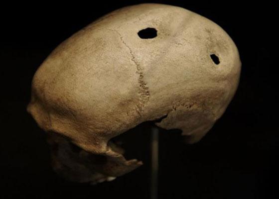 شق السان وثقب الجمجمة.. أغرب الطرق العلاجية على مر التاريخ صورة رقم 4
