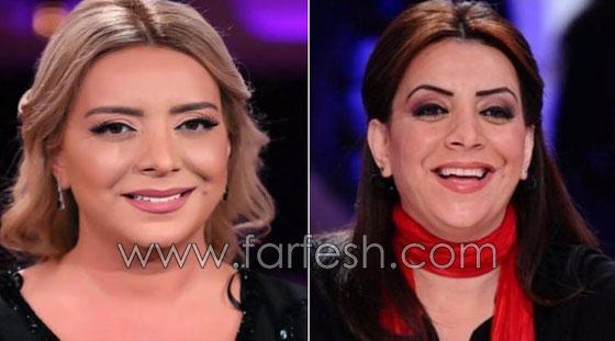 صورة رقم 1 - بالصور.. هؤلاء النجمات العرب قبل وبعد عمليات التجميل