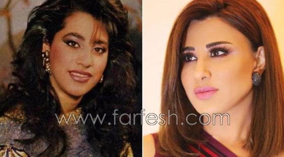 صورة رقم 3 - بالصور.. هؤلاء النجمات العرب قبل وبعد عمليات التجميل