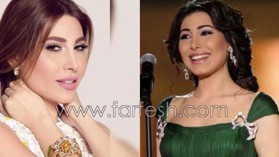 صورة رقم 5 - بالصور.. هؤلاء النجمات العرب قبل وبعد عمليات التجميل