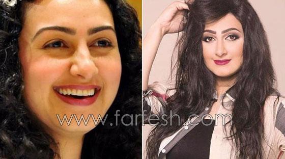 صورة رقم 6 - بالصور.. هؤلاء النجمات العرب قبل وبعد عمليات التجميل