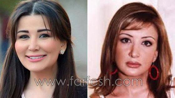 صورة رقم 7 - بالصور.. هؤلاء النجمات العرب قبل وبعد عمليات التجميل