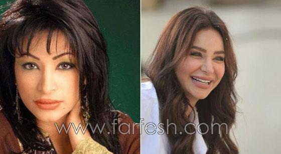 صورة رقم 9 - بالصور.. هؤلاء النجمات العرب قبل وبعد عمليات التجميل