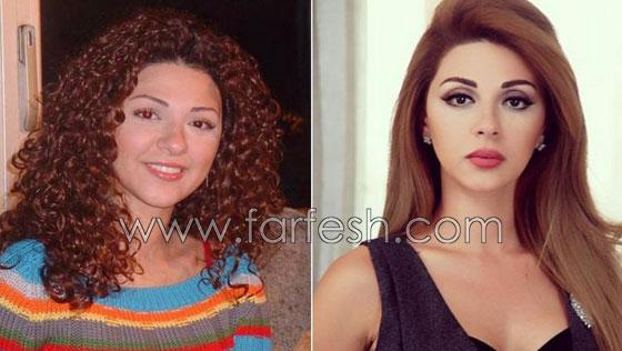صورة رقم 10 - بالصور.. هؤلاء النجمات العرب قبل وبعد عمليات التجميل