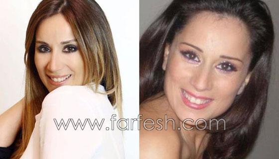 صورة رقم 11 - بالصور.. هؤلاء النجمات العرب قبل وبعد عمليات التجميل