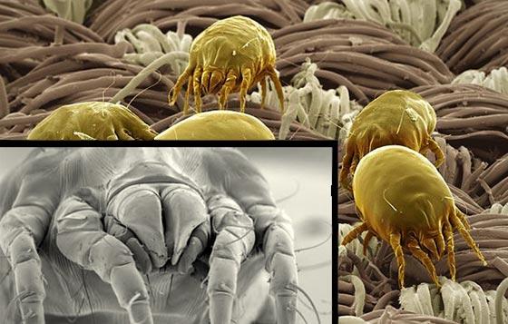 صورة رقم 1 - أخطار لا تعرفها  في الفراش قد تسبب أمراض خطيرة
