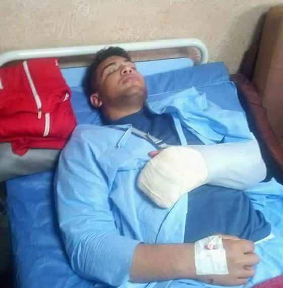 صورة رقم 1 - مجهولون يهاجمون عبد اللطيف منيع بطل العالم بالمصارعة وحالته حرجة