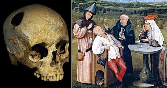 رغم تطوَّر الطب.. أغرب العلاجات التقليدية صورة رقم 2