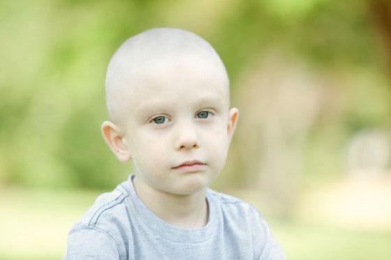 مجموعة أعراض خطيرة للوكيميا الأطفال صورة رقم 2