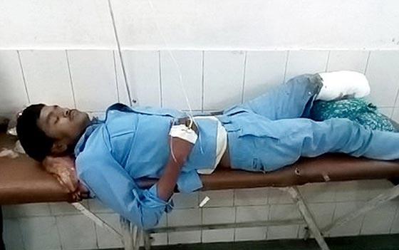 فيديو صادم: استعملوا ساقه المبتورة كوسادة في الهند صورة رقم 1