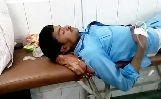 فيديو صادم: استعملوا ساقه المبتورة كوسادة في الهند صورة رقم 2