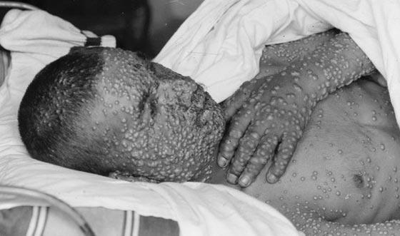 أبرز الأوبئة التي عصفت بالبشرية وتسببت في هلاك الملايين صورة رقم 2