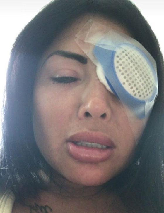 بالصور.. نجمة إنستغرام تصاب بالعمى بسبب تغيير لون عينيها صورة رقم 3