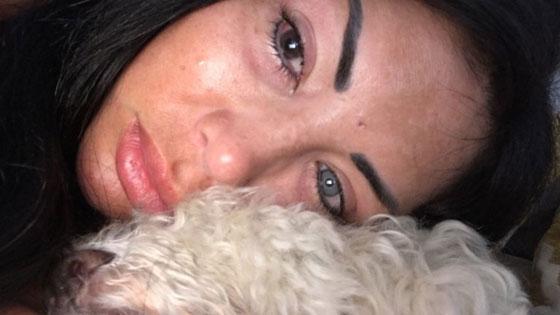 بالصور.. نجمة إنستغرام تصاب بالعمى بسبب تغيير لون عينيها صورة رقم 1