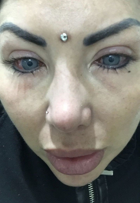 بالصور.. نجمة إنستغرام تصاب بالعمى بسبب تغيير لون عينيها صورة رقم 6