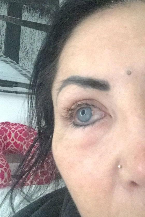بالصور.. نجمة إنستغرام تصاب بالعمى بسبب تغيير لون عينيها صورة رقم 7