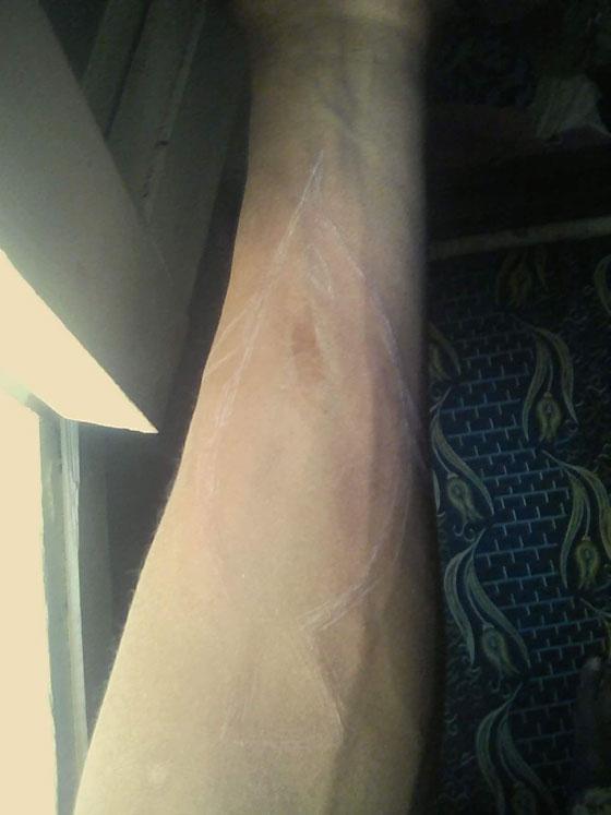 صورة رقم 1 - ضحية جديدة للحوت الأزرق بمصر، شاب حاول حرق شقيقاته ووالده
