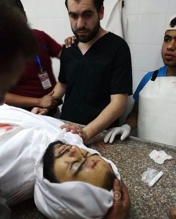 صورة مؤلمة.. طبيب في غزة يتفاجأ بجثة أخيه صورة رقم 1