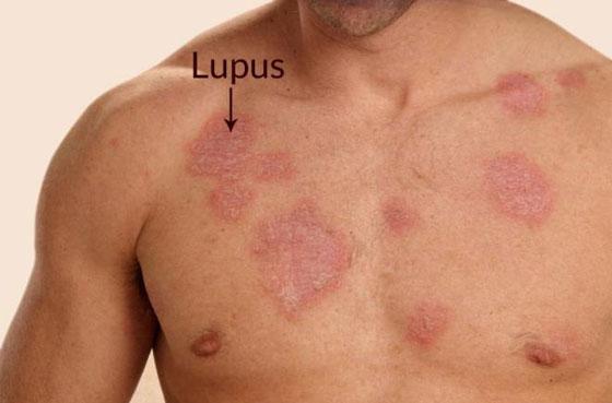 مجموعة أمراض ماكرة احيانا يخطئ الأطباء في تشخيصها  صورة رقم 9