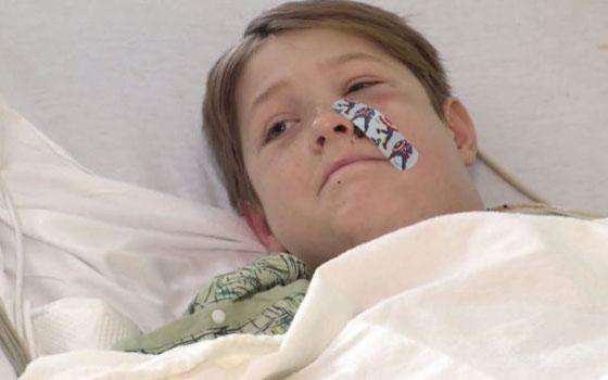 نجاة طفل (10 سنوات) من الموت بأعجوبة بعد اختراق سيخ لحم معدني لرأسه! صورة رقم 5
