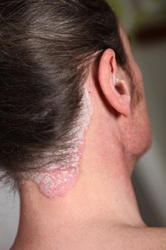 علاجات جديدة (بديلة) للمصابين بالصدفية تحمل آمالا كبيرة صورة رقم 8