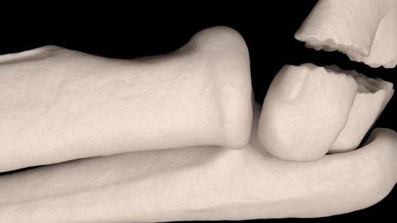 إليكم 5 معتقدات خاطئة حول كسور العظام صورة رقم 1
