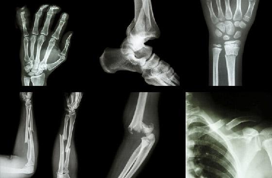 إليكم 5 معتقدات خاطئة حول كسور العظام صورة رقم 3