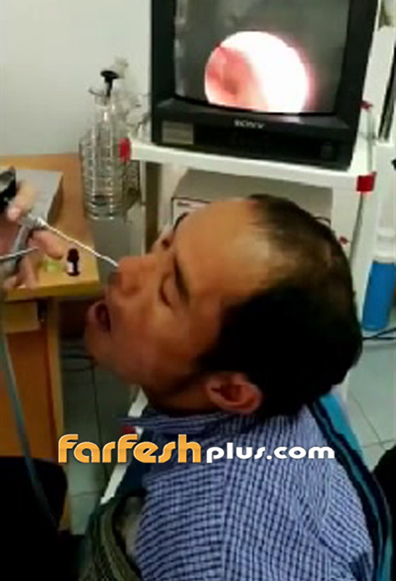 فيديو صادم ومقزز.. طبيب يخرج مخلوقا حيا من أنف رجل فيتنامي! صورة رقم 2