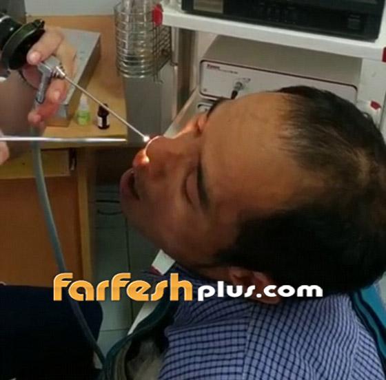 فيديو صادم ومقزز.. طبيب يخرج مخلوقا حيا من أنف رجل فيتنامي! صورة رقم 3