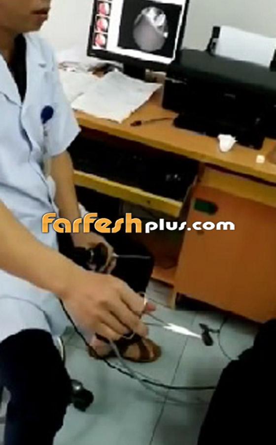 فيديو صادم ومقزز.. طبيب يخرج مخلوقا حيا من أنف رجل فيتنامي! صورة رقم 6