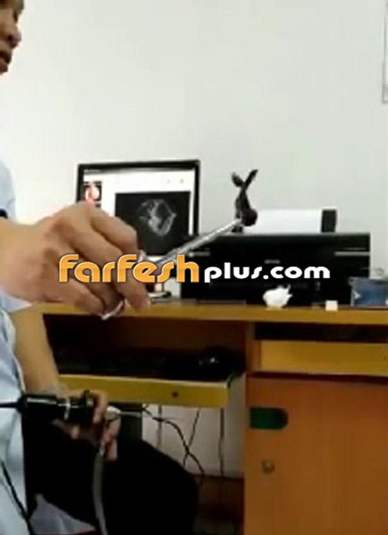 فيديو صادم ومقزز.. طبيب يخرج مخلوقا حيا من أنف رجل فيتنامي! صورة رقم 8
