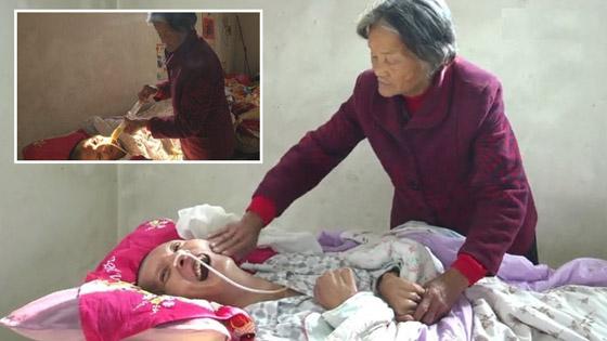 معجزة.. رجل صيني يستيقظ من غيبوبة بعد اعتناء والدته به 12عاما صورة رقم 7