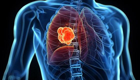 صورة رقم 2 - 10 أنواع لمرض السرطان، وأعراض كل نوع من أنواعه تحذرك منها