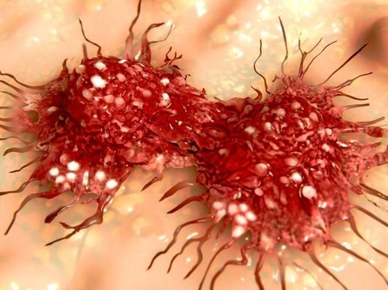 صورة رقم 7 - 10 أنواع لمرض السرطان، وأعراض كل نوع من أنواعه تحذرك منها