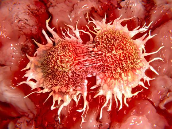 صورة رقم 3 - 10 أنواع لمرض السرطان، وأعراض كل نوع من أنواعه تحذرك منها