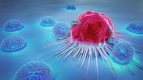 صورة رقم 9 - 10 أنواع لمرض السرطان، وأعراض كل نوع من أنواعه تحذرك منها