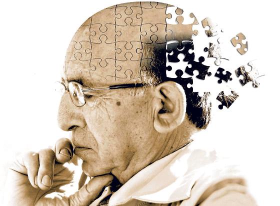أبرز 10 أعراض هي مؤشر قوي على مرض الزهايمر صورة رقم 1
