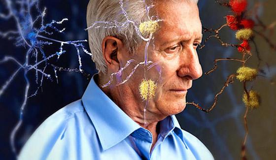 أبرز 10 أعراض هي مؤشر قوي على مرض الزهايمر صورة رقم 3